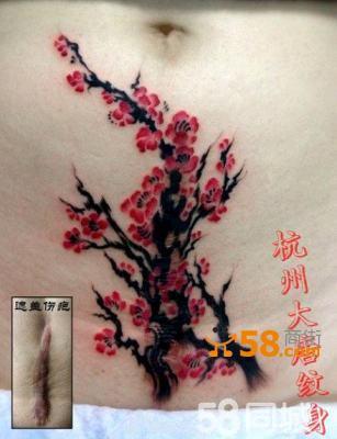 杭州大唐纹身- 盖疤纹身